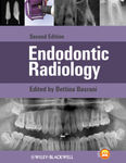 Micro-Computed Tomography in Endodontic Research by Mana Mirfendereski and Ove A. Peters